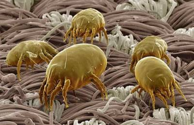 Picture of Dust Mites